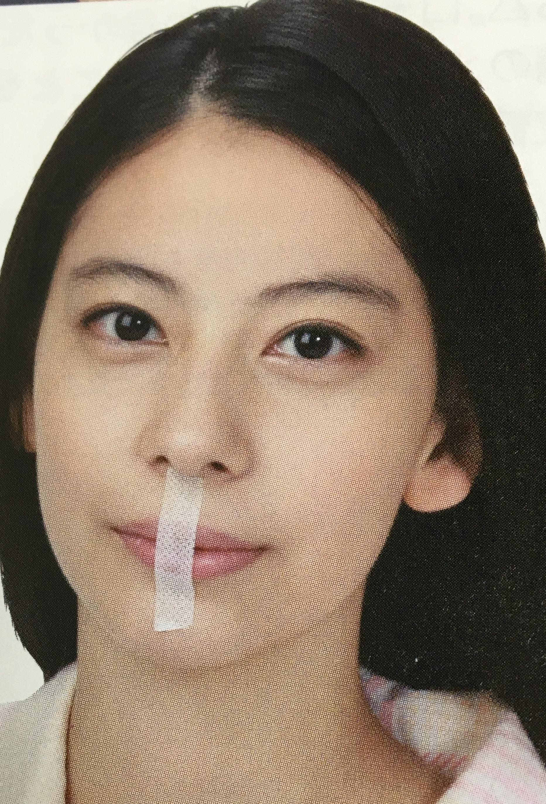unnamed file 4 - 即効!口呼吸の害を止める 口テープ